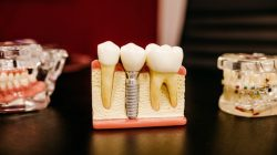 4 Ways Dentists Can Increase Their Revenue